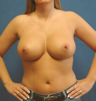 Augmentation breast breast implant information web what