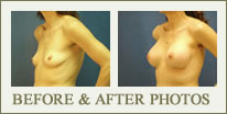 Before & After Breast Augmentation Photos