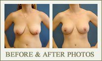Breast Lift Before & After Photos