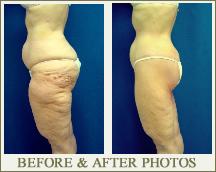 Thigh & Butt Lift Surgery